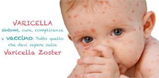 varicella sintomi