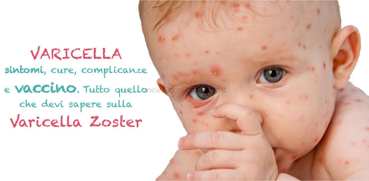 Varicella vaccino sintomi cura ecco che fare se si - Varicella si puo fare il bagno ...